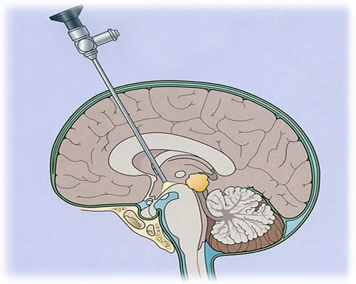 Illustration of a minimally invasive brain surgery
