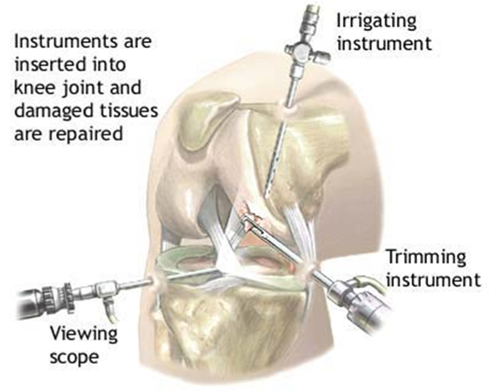 Illustrated diagram of an arthroscopic procedure in the knee